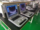 4D Ultrasound Machine voor Pregnance
