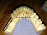 Zahnmedizinisches Porzellan Metal fixiert Brücke