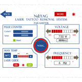 1개 Q Switch SPA Salon Tattoo Removal ND YAG Laser Machine (VN5)에서 3