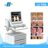 Máquina facial do cuidado de pele de Hifu para a venda