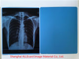 Película médica de la radiografía seca médica azul de la película de la inyección de tinta