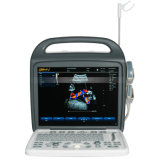 Ultrason de diagnose de Doppler de couleur de l'instrument médical Bcu-30