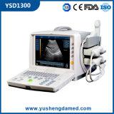 Varredor portátil diagnóstico qualificado do ultra-som do equipamento médico da venda elevação quente