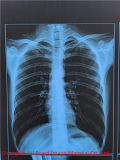 Película de radiografía médica clínica