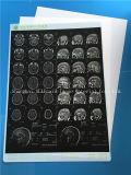 医学のデジタルX線の白のフィルム