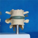 Esqueleto humano lumbar Modelo refect la enfermedad lumbar para la Investigación Médica