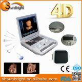 Ce Medical Equipment 3D 4D Hand-Held Laptop Color Ultrasound