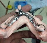Zahnmedizinisches Kobalt-Chrom-Gussteil-Rahmen-Gebiss