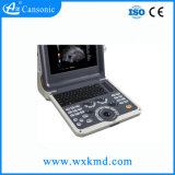 Scanner portatif neuf d'ultrason de couleur