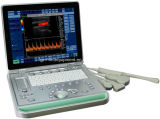 最も安いColorドップラーMedical Equipment第2 3D 4D Portable Ultrasound Scanner (Choiceのための7 Models)
