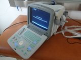 Handgetragener PC Plattformportable-Ultraschall