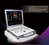 портативная машина ультразвука Doppler USG цвета 3D