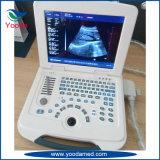 Scanner Plein-Digital d'ultrason de chariot à technologies de l'image