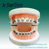 Tand Orthodontische Zelf het Afbinden van de Oneindigheid Steunen met Instrumenten