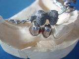 Zahnmedizinisches Gussteil-teilweises Gebiss-Zubehör mit kostbaren Zubehören