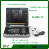9.7 인치 접촉 스크린 Mslpu44A를 가진 B/W 초음파 스캐너