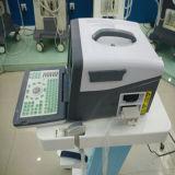 Draagbare B-Ultrasone klank Nieuwste Scanner -