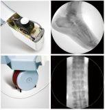 Système mobile à haute fréquence de rayon X de C-Bras