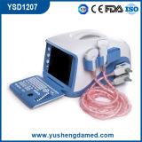 デジタル携帯用超音波システム(YSD1207)