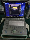 Preiswerter beweglicher Farben-Doppler-Ultraschall-Scanner des Laptop-3D für Vasular Durchblutung