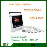 Bewegliche Farben-Digital-Ultraschalldiagnosedarstellung-System Mslcu25A