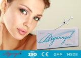Reyoungel Hyaluronate saure Einspritzung-Lippenfülle-Hauteinfüllstutzen
