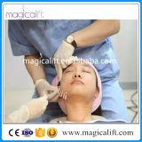 Proprietà materiali mediche del suturare & dell'adesivo e tipo di sollevamento filetto del filetto di Pdo