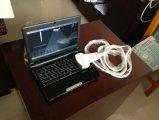 Kleiner ultradünner beweglicher Ultraschall-Scanner