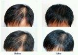 Petróleo del suero del crecimiento del pelo del No1 de Asia densa del pelo del aumento natural del jengibre el 100% de los tratamientos de la pérdida de pelo de la esencia del crecimiento del pelo de Andrea
