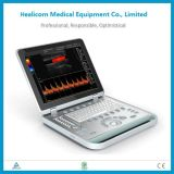 Sistema de ultrasonido Doppler color Huc5 3D