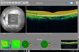 Tomograph optique de concordance, oct., segment antérieur/postérieur de matériel ophtalmique,