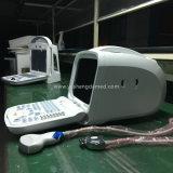 Scanner portatile di ultrasuono di Digitahi della vescica addominale medica dei prodotti del Ce