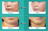 Thermolift RF para a máquina antienvelhecimento da remoção do enrugamento da face & do corpo