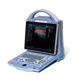 人間のためのポータブルカラードップラー超音波スキャナ(DCU12)