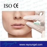 Ácido hialurónico de la inyección cutánea del llenador para la plenitud del labio