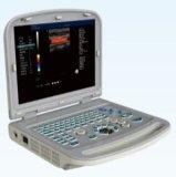 Easywell 휴대용 퍼스널 컴퓨터 복부 평가를 위한 볼록한 탐침을%s 가진 수의 색깔 초음파 128 성분 Ew C15V