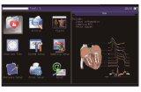Máquina del electrocardiógrafo de Digitaces de los canales Bk-ECG6 6