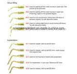 Punte di rappresentazione in scala del picchio per Ultrasurgery