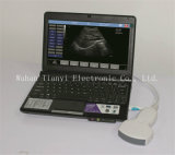 LaptopのパソコンのためのDIGITAL完全なPortable USB Ultrasound Probe