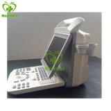 Scanner portatif d'ultrason de My-A005A tout le système d'ultrason de Digitals