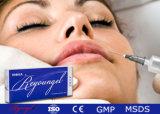 Llenador cutáneo del ácido hialurónico para quitar el Facial profundo Wrinkle1.0ml &2.0ml