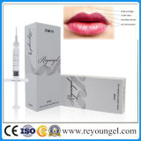 Reyoungel Hyaluronic Säure-Lippenfülle-Hauteinfüllstutzen-Einspritzung