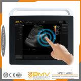 胎児のドップラー超音波イメージ投射医療機器(Touchscan Ts60)
