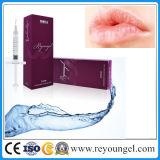 Da injeção ácida do realce do bordo de Hyaluronate pele cutânea do implante do enchimento