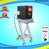 Spitzenstabilitäts-beweglicher Tätowierung-Abbau-Laser YAG