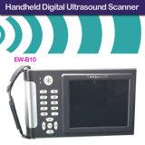 Scanner diagnostique tenu dans la main Ew-B10 d'ultrason avec la sonde convexe C3.5r60 pour l'abdomen, Gyneology, obstétrique