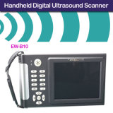 De handbediende Kenmerkende Scanner van de Ultrasone klank ew-B10 met Convexe Sonde C3.5r60 voor Buik, Gyneology, Verloskunde