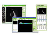 Equipamento Ophthalmic da qualidade de China varredura Ophthalmic do Ab do melhor (CAS-2000B+)