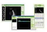 Augenab Scan China-des besten Qualitätsaugengeräten-(CAS-2000B+)