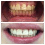 キットを白くするベストセラー35%Cp贅沢なホーム歯